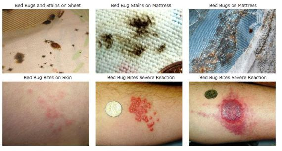 signs of bedbugs