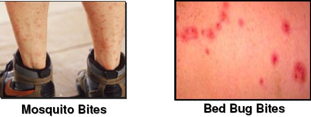 Bed Bugs Bite Pictures, Identification, and Treatment