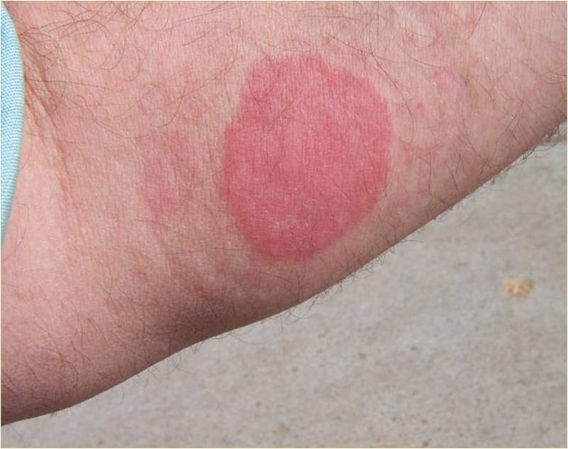 Bed Bug Bites Photos And Tips