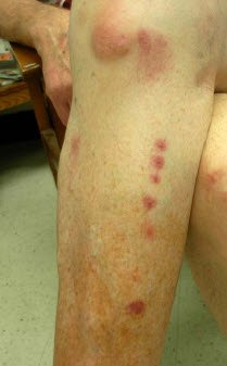 bed bug bite photos