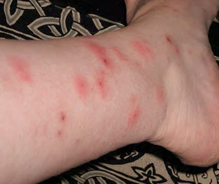 Bed Bugs Bite Pictures Identification And Treatment