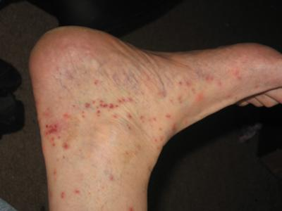 Bed Bug Bites on Foot