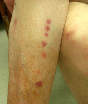 Bed bug bites in a line on a leg