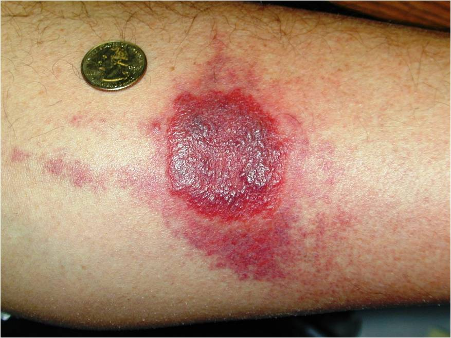 bed bug wheal skin rash reaction