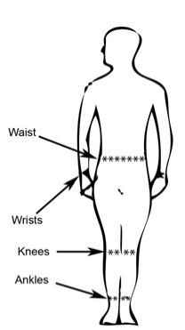 illustration of chigger bite locations on body