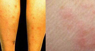 Flea Bites Picture on Left vs. Bed Bug Bite Picture on Right. Note how the flea bites are all red while bed bug bites have a clear or different color center.
