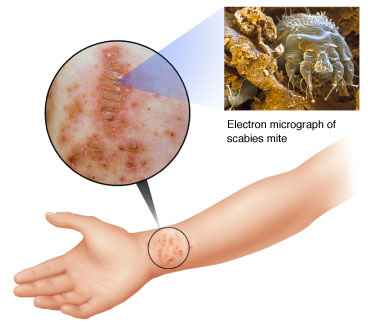 scabies bite on arm