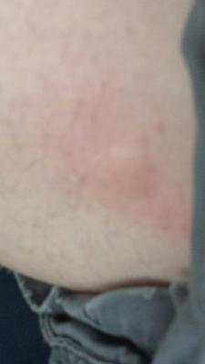 My boyfriend is a truck driver and woke up with 2 welted up bites like this on the back of his thighs up close to his rear end. One on each thigh. Can you help me figure out what it is?
