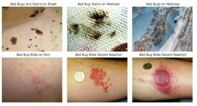 Bed Bug Bite Signs and Symptoms