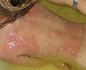erythema skin reaction from scratching bed bug bites