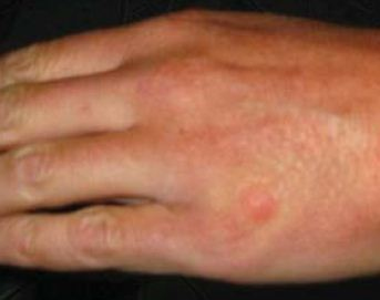 bed bug bite on hand