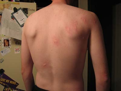 Picure Mosquito bites on lower back - example 2